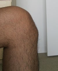 Tick Bite Related Sore Joints & What To Do About Them