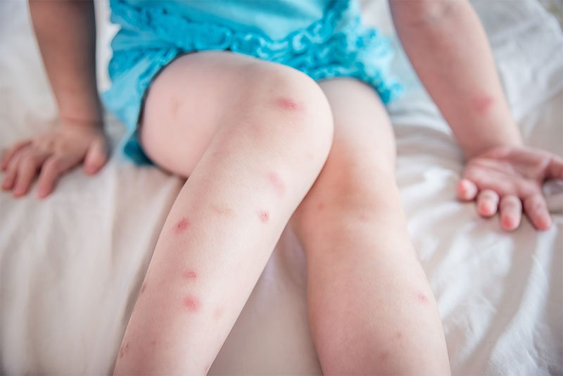Do mosquitoes bite and what are the symptoms?